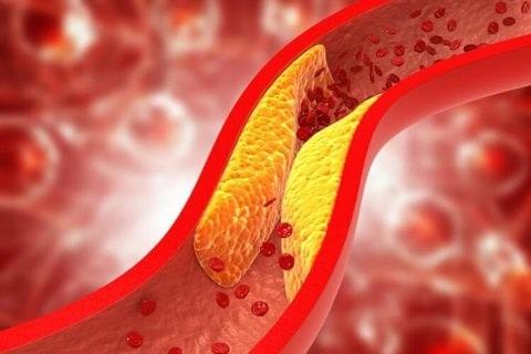 Hình xơ vữa động mạch: Sự hiện diện các yếu tố của Hội chứng chuyển hóa sẽ thúc đẩy hình thành và phát triển các mảng xơ vữa trong động mạch.
